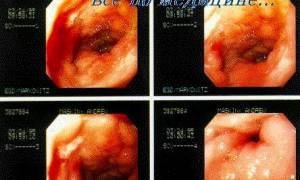 Прободная язва желудка история болезни