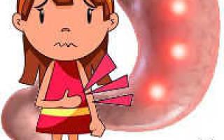 Какое можно слабительное при язве желудка