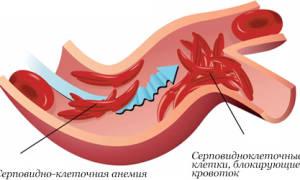 Тошнота при анемии