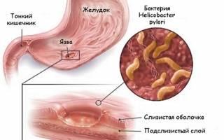 Почему появляется язва желудка