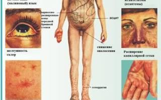 Метеоризм при циррозе печени лечение