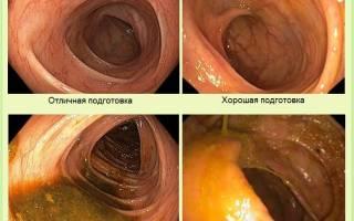 Как подготовиться к колоноскопии кишечника в домашних условиях