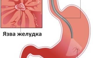 Стандарты лечения язвенной болезни желудка и двенадцатиперстной кишки