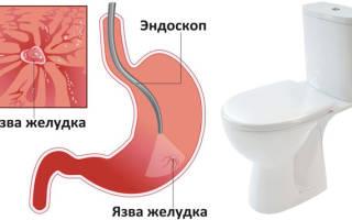 При язве желудка может ли быть понос