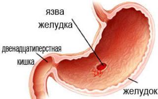 Синдром язвы желудка