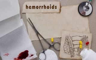 Свечи от геморроя недорогие и эффективные при кровотечении