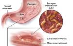 Рентген признаки язвы желудка