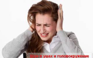 Головокружение шум в ушах тошнота слабость
