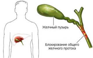 Холецистит без желчного пузыря