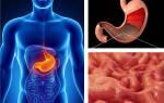 Лечение язвы желудка с повышенной кислотностью