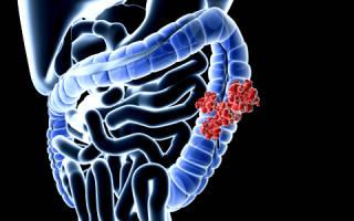 Лечение синдрома раздраженного кишечника с диареей и метеоризмом