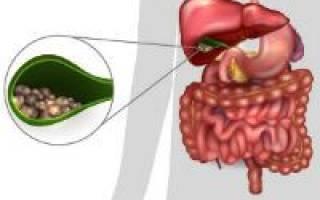 Современные методы лечения холецистита